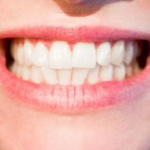 gevoelige tanden en tandhals