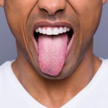 witte tong en schimmel tong